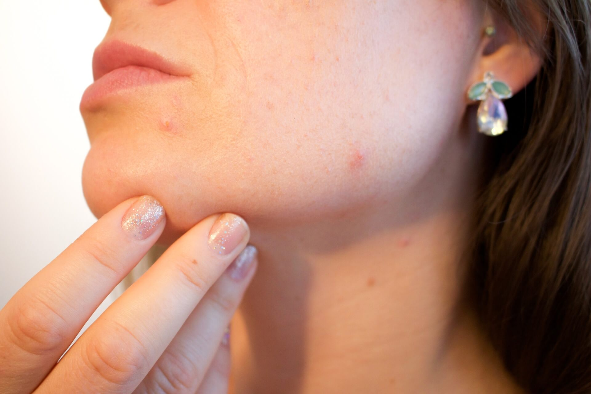 Checking Skin for Acne and Other Anomalies