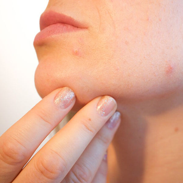 Acne on Women's Chin