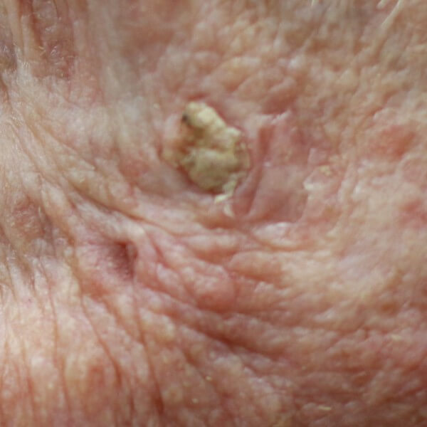 Squamous Cell Cancers <br /><small>(the second most common skin cancer)</small>
