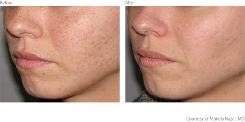 Before After Pigmentation Freckles Courtesy of Mariela Nazar MD Intense Pulse Light