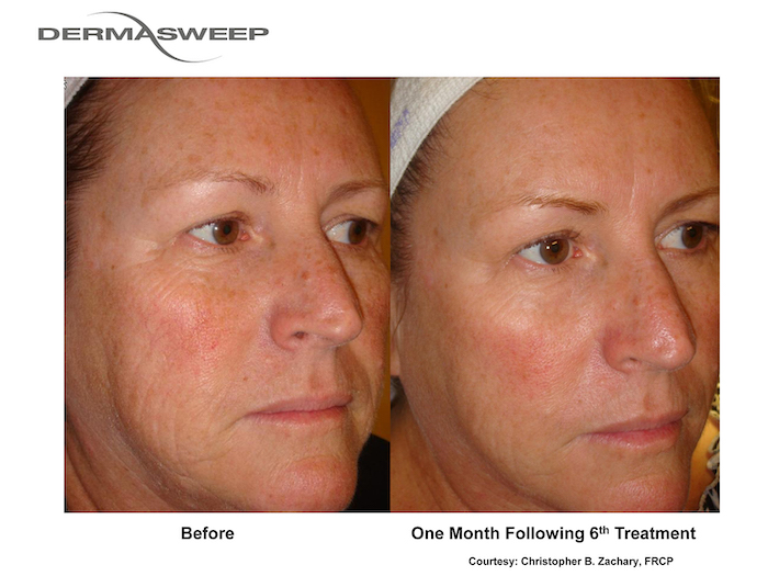 Dermasweep Before and After Pigment Tone and Texture